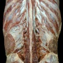 Photo - Multifidus muscle and dorsal rami