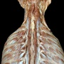 Photo - Deep muscles of neck