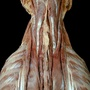 Photo - Erector spinae muscles of neck